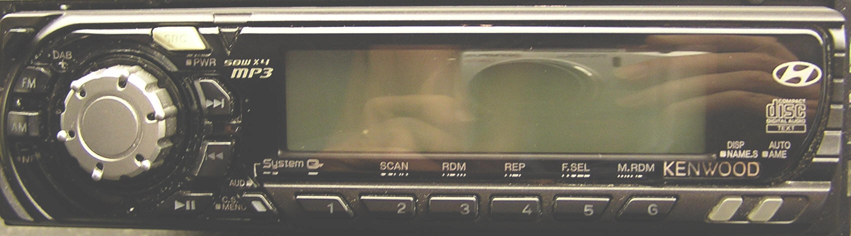 Hyundai Elantra Car Radio Removal and Repair